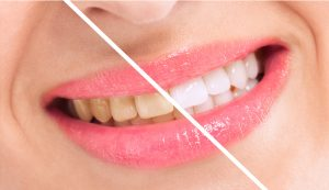 teeth whitening before and after 1