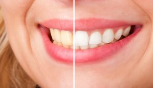 teeth whitening before and after 3