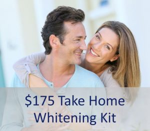 $175 take home whitening kit